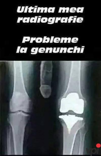 Probleme la genunchi